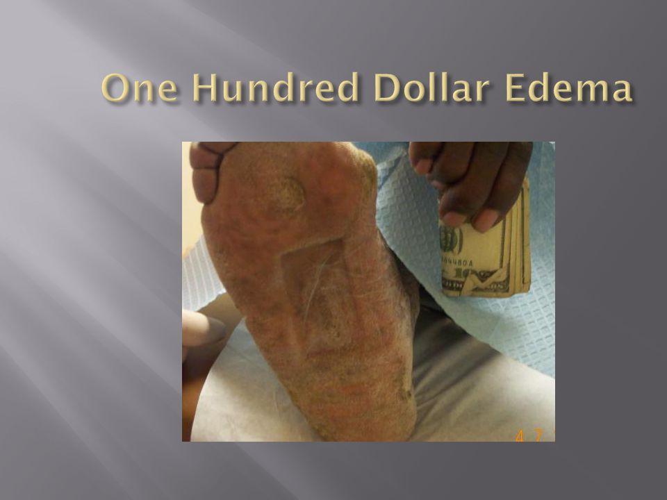 One Hundred Dollar Edema