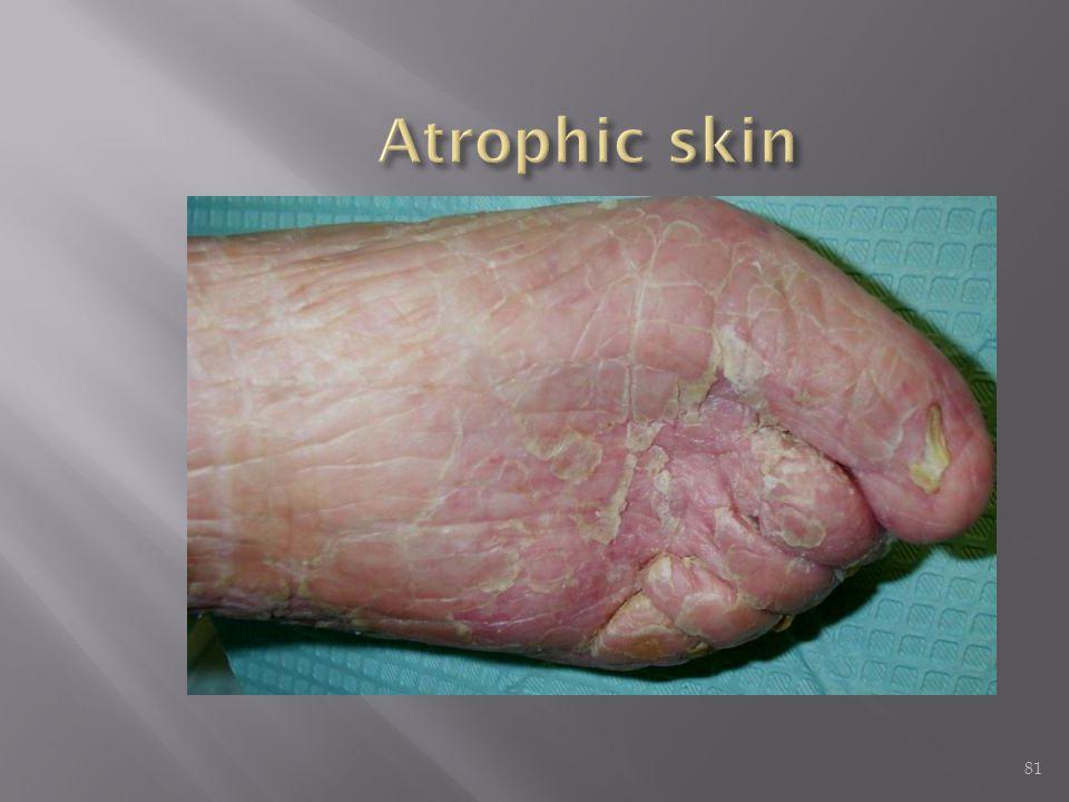 Atrophic skin