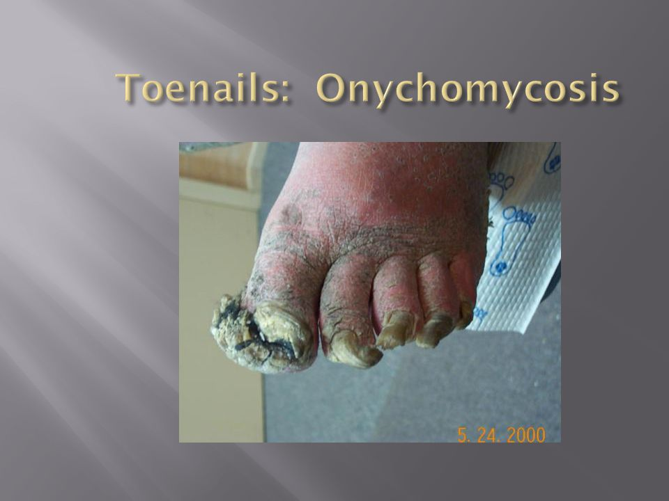 Toenails: Onychomycosis