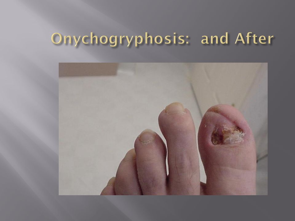 Onychogryphosis: and After