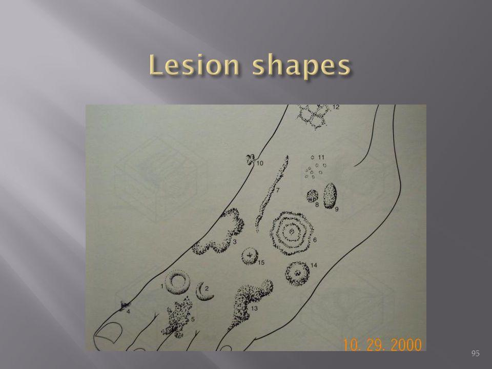 Lesion shapes