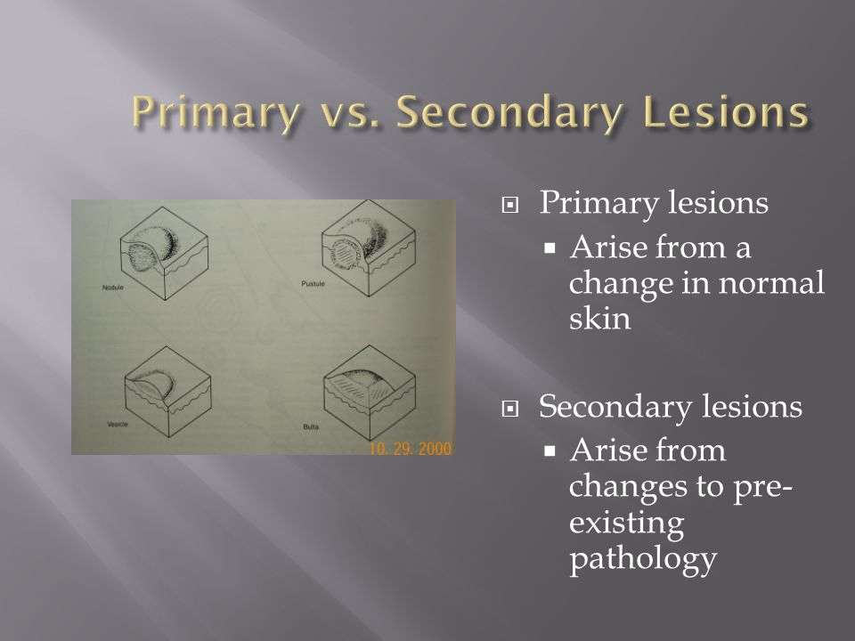 Primary vs. Secondary Lesions