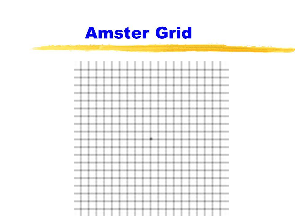 Amster Grid