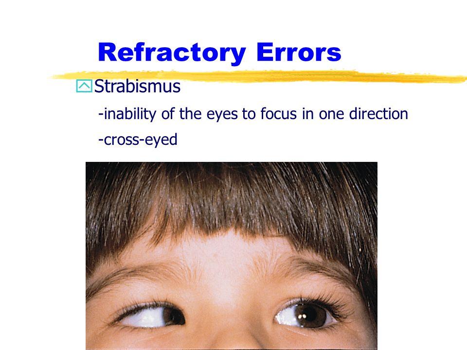 Refractory Errors Strabismus