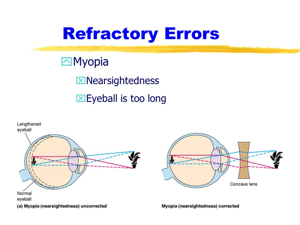Refractory Errors Myopia Nearsightedness Eyeball is too long