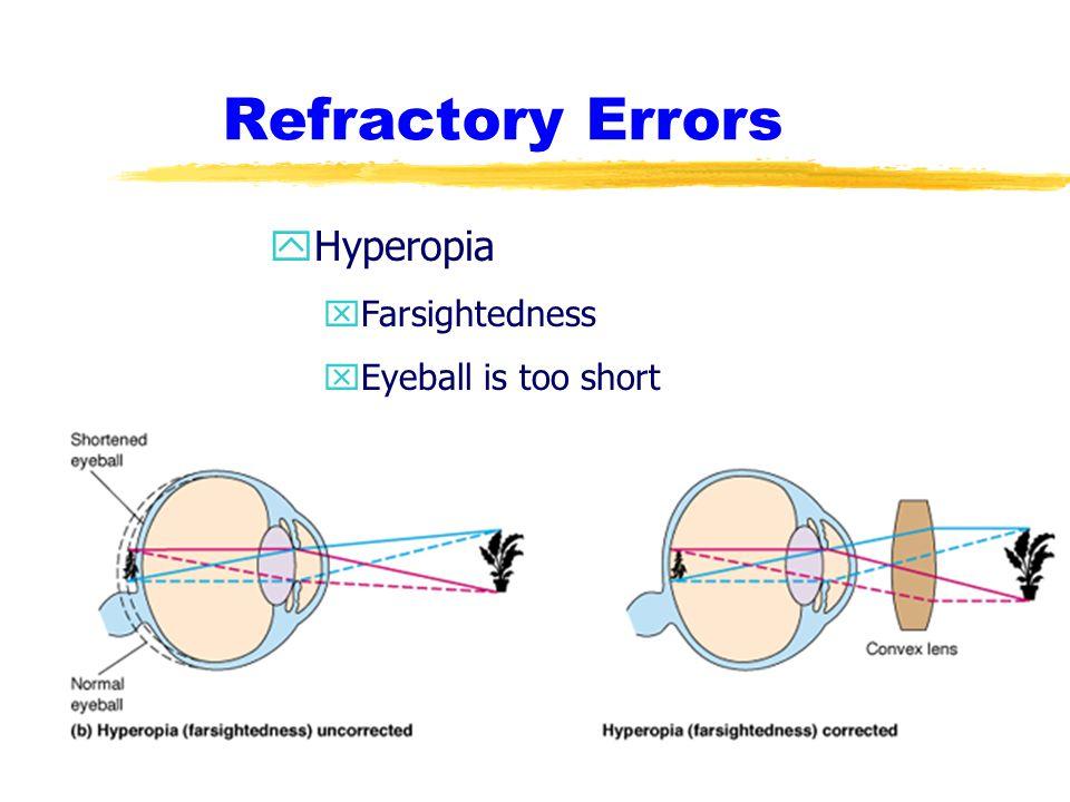 Refractory Errors Hyperopia Farsightedness Eyeball is too short