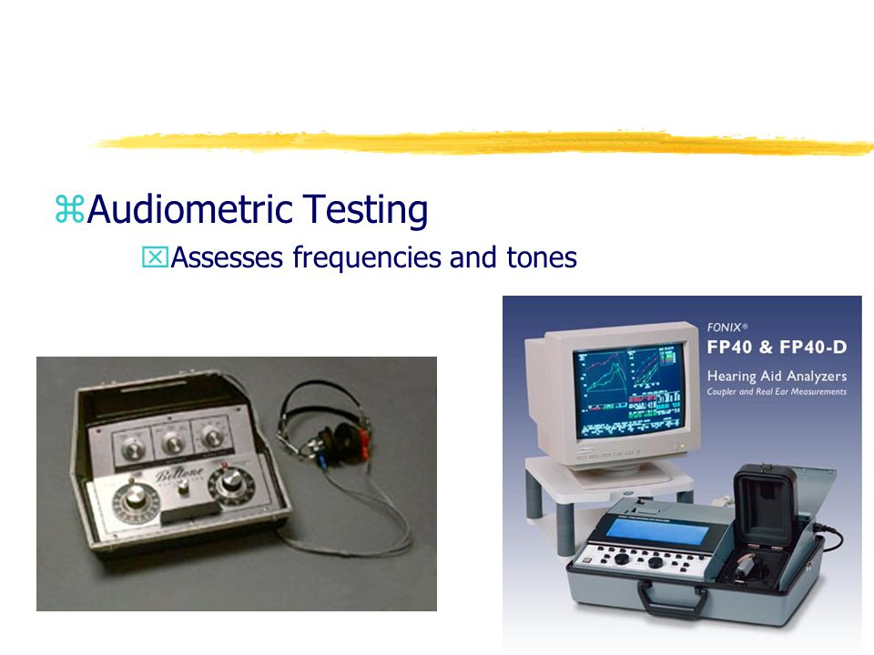 Audiometric Testing Assesses frequencies and tones