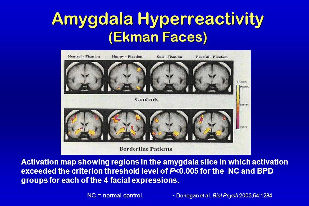 Amygdala Hyperreactivity (Ekman Faces)