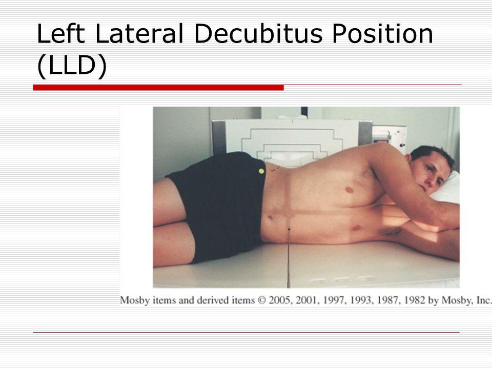 Left Lateral Decubitus Position (LLD)