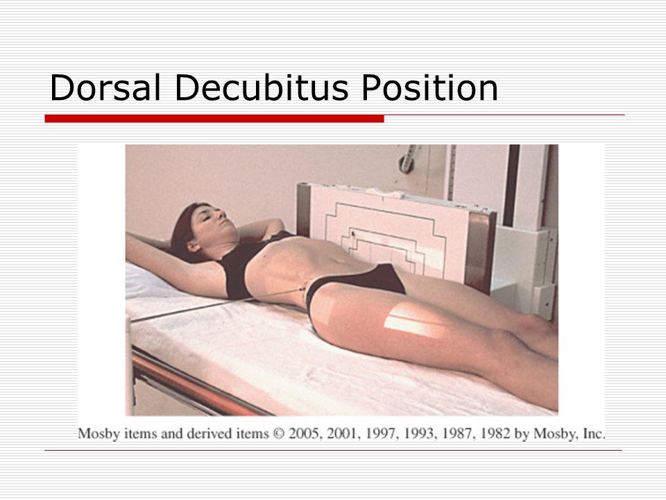Dorsal Decubitus Position