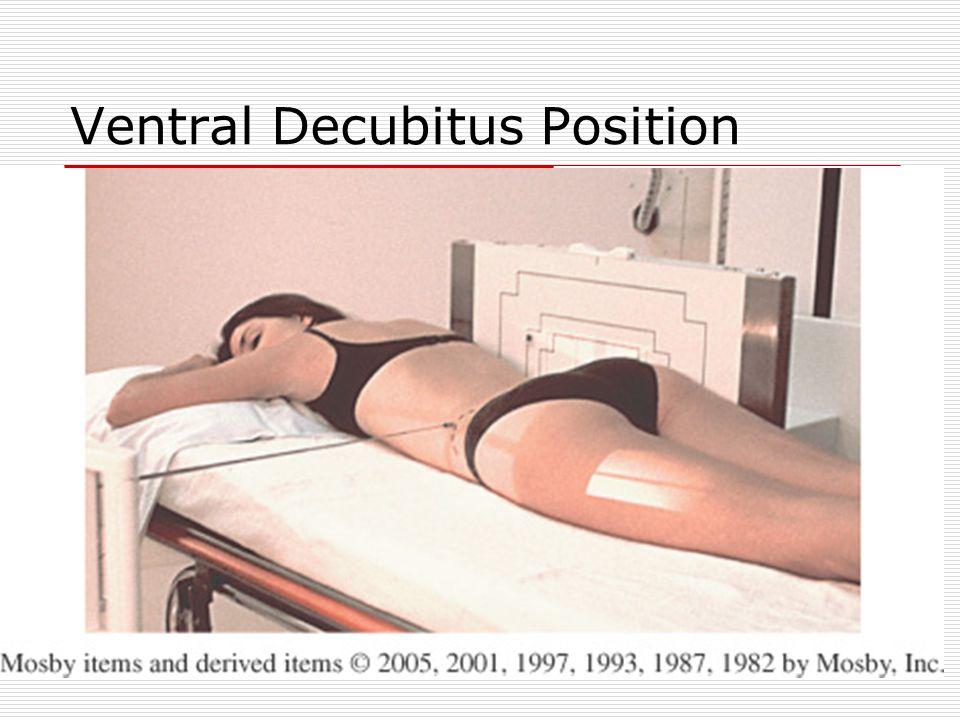 Ventral Decubitus Position