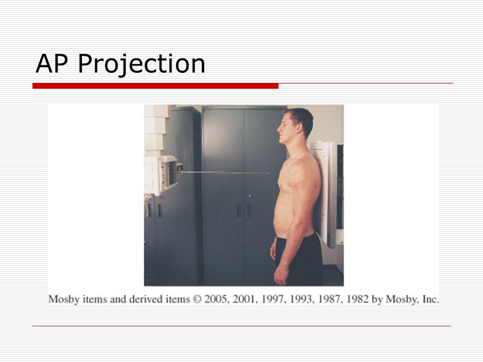 AP Projection
