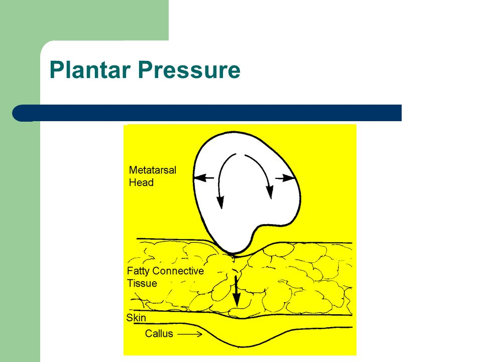 Plantar Pressure An excessively pronating foot will cause an increase in shear stresses
