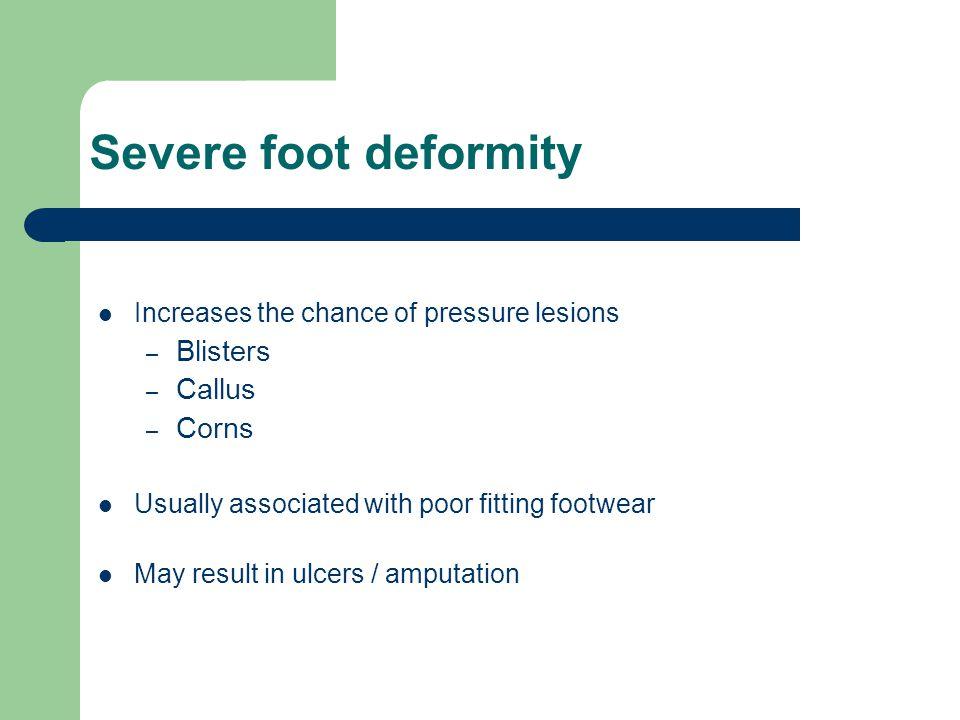 Severe foot deformity Blisters Callus Corns