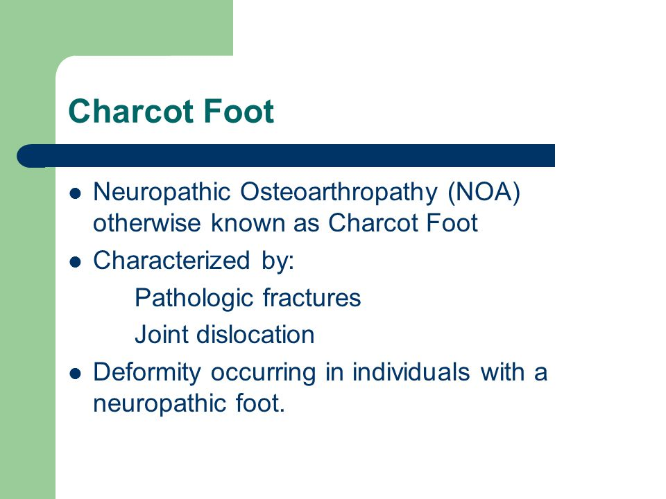 Charcot Foot Neuropathic Osteoarthropathy (NOA) otherwise known as Charcot Foot. Characterized by: