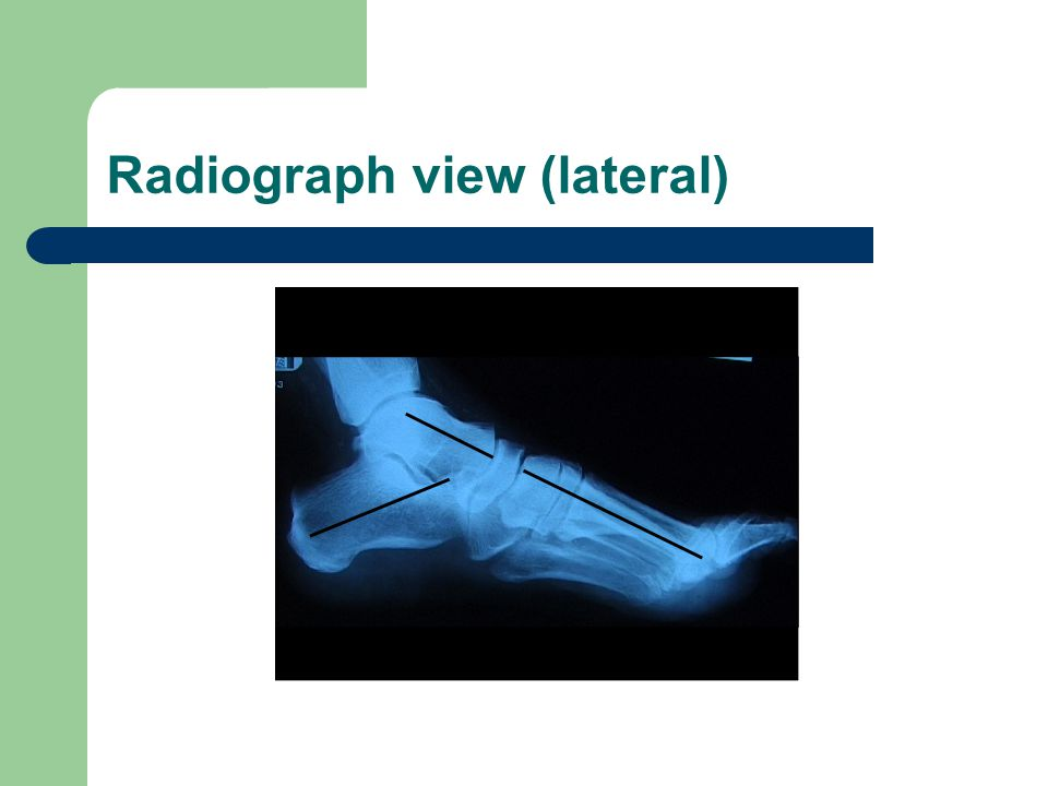Radiograph view (lateral)