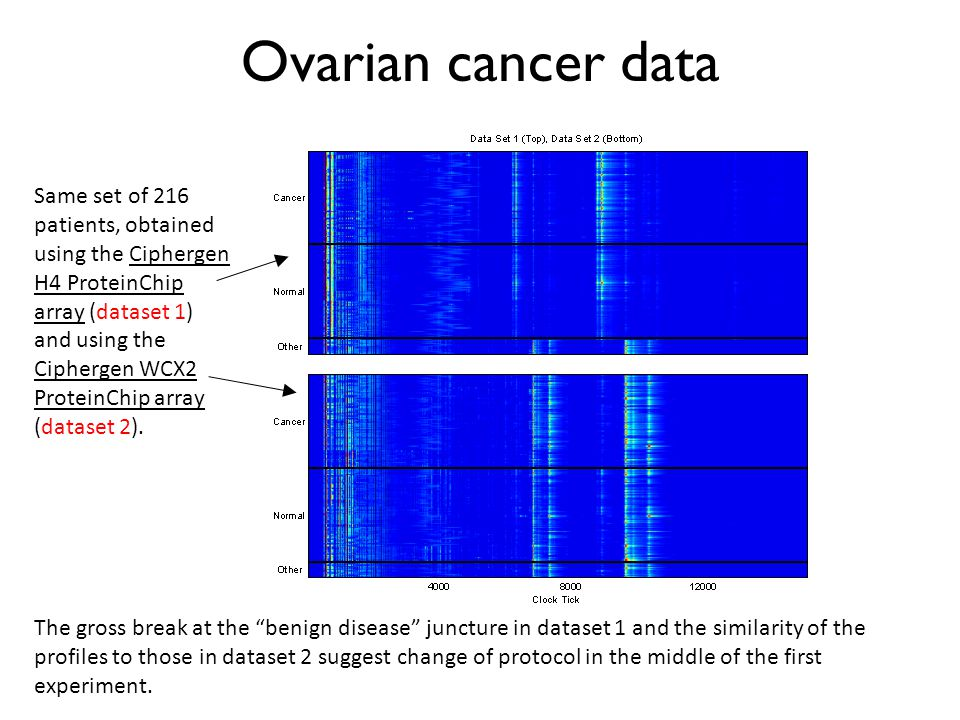 Ovarian cancer data