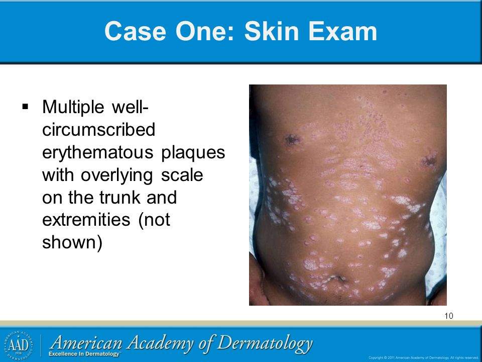 Case One: Skin Exam Multiple well- circumscribed erythematous plaques with overlying scale on the trunk and extremities (not shown)