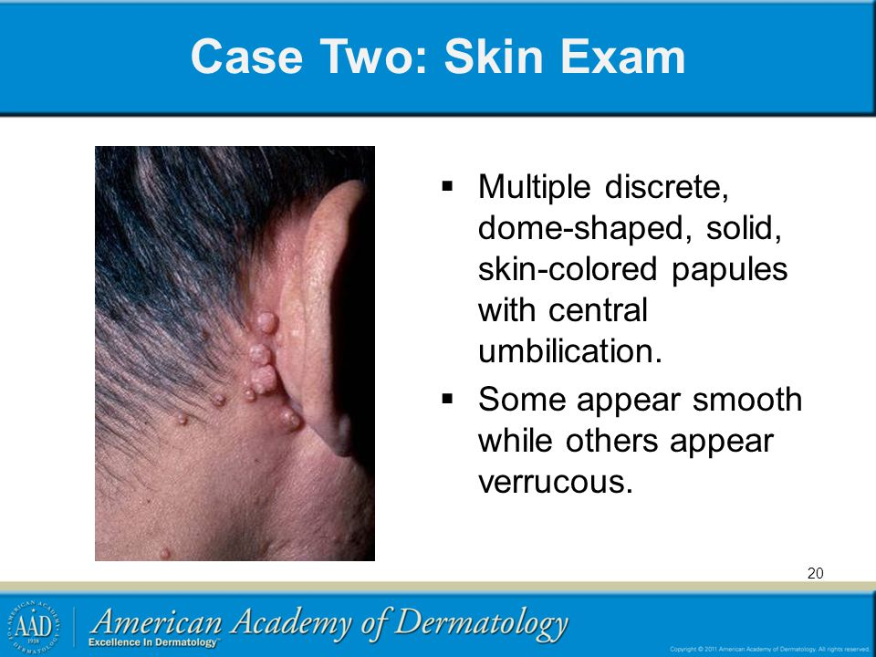 Case Two: Skin Exam Multiple discrete, dome-shaped, solid, skin-colored papules with central umbilication.