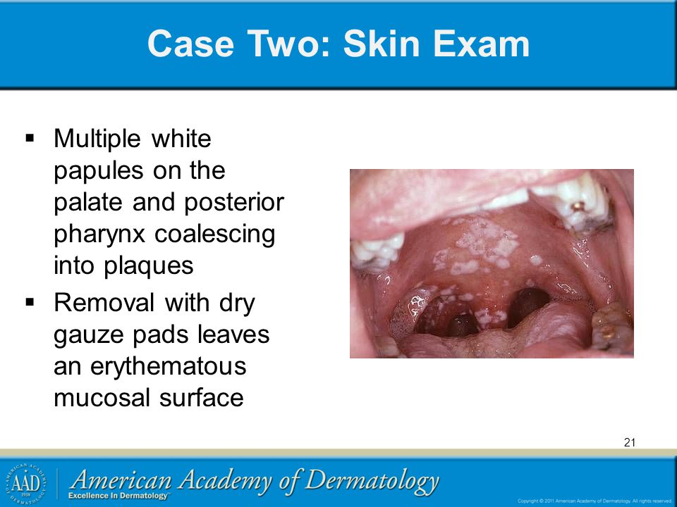 Case Two: Skin Exam Multiple white papules on the palate and posterior pharynx coalescing into plaques.