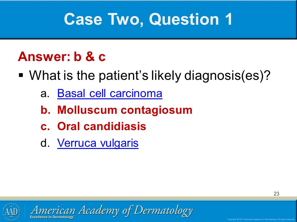 Case Two, Question 1 Answer: b & c