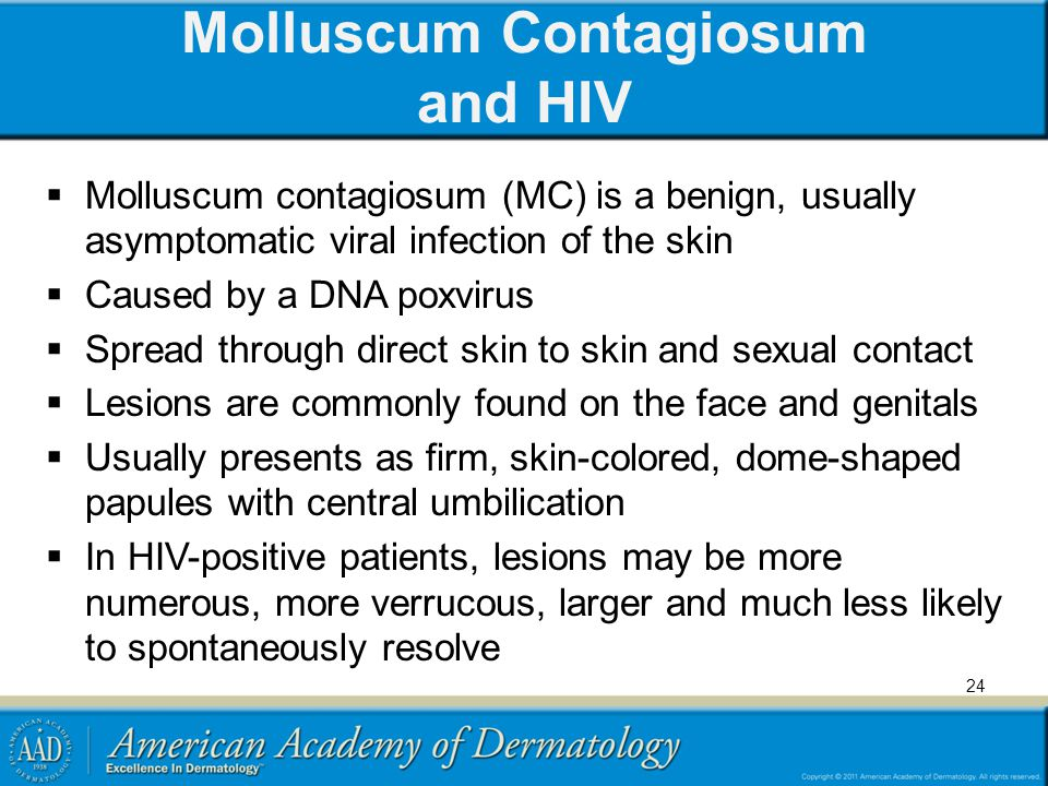 Molluscum Contagiosum and HIV
