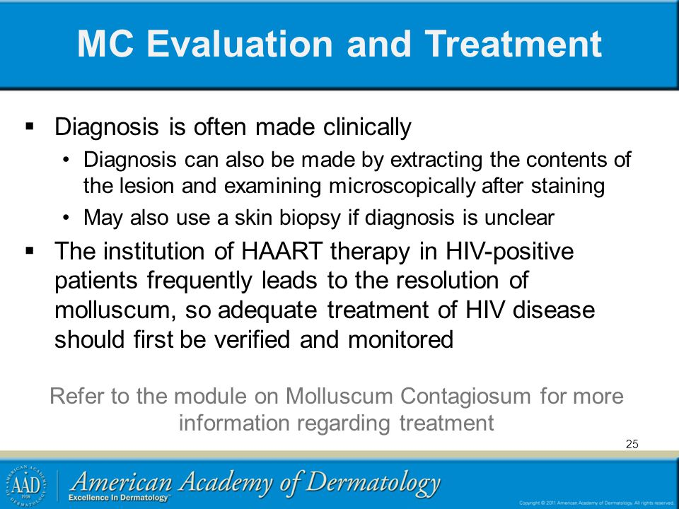 MC Evaluation and Treatment