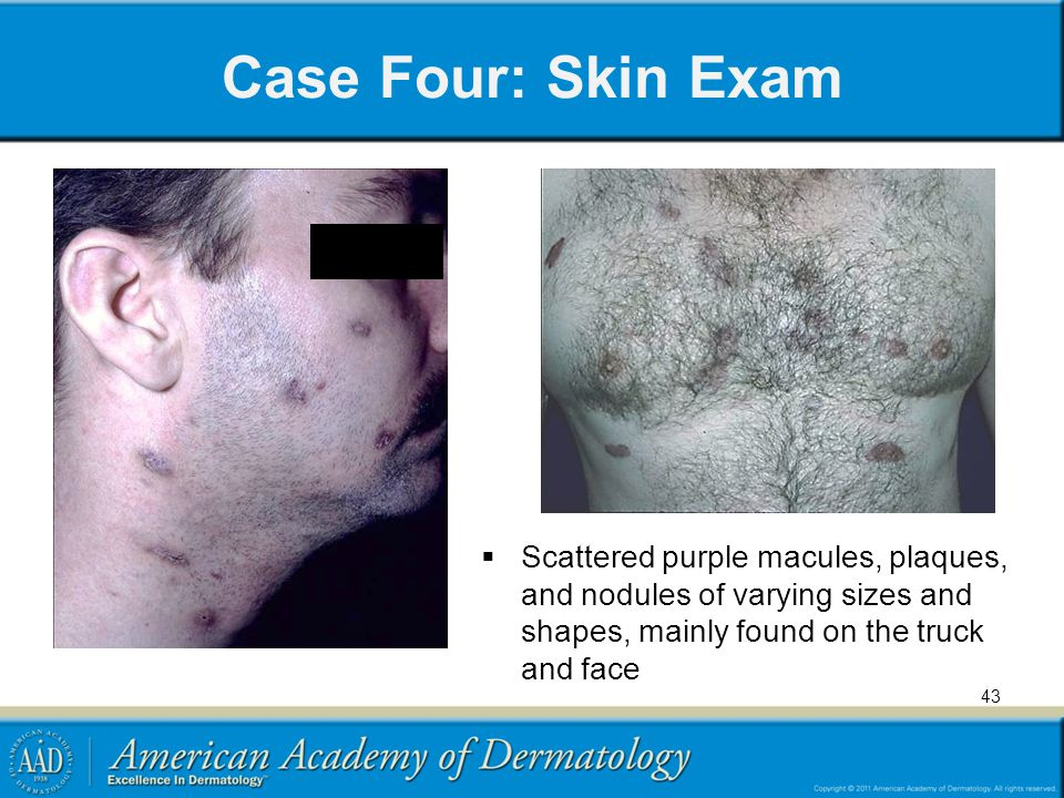 Case Four: Skin Exam Scattered purple macules, plaques, and nodules of varying sizes and shapes, mainly found on the truck and face.