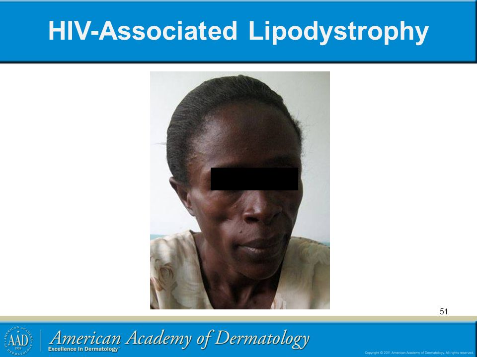 HIV-Associated Lipodystrophy