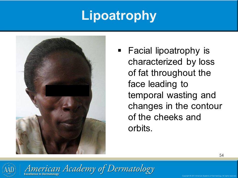Lipoatrophy
