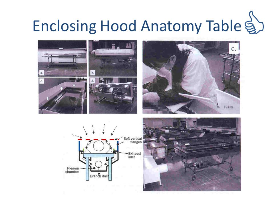 Enclosing Hood Anatomy Table