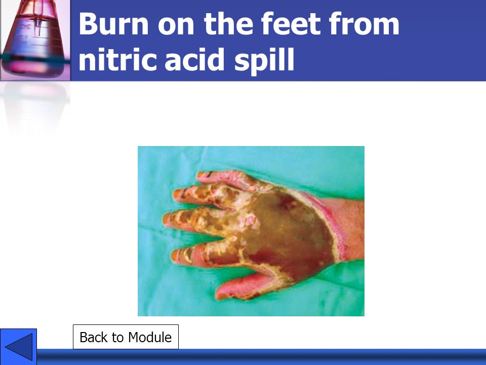 Burn on the feet from nitric acid spill