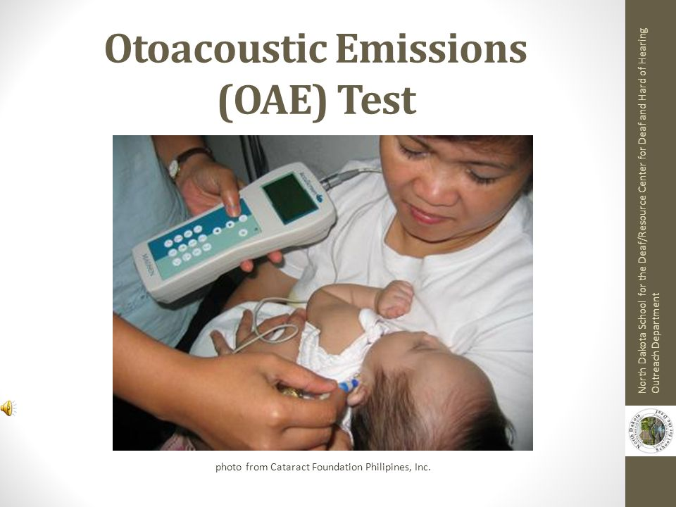 Otoacoustic Emissions (OAE) Test