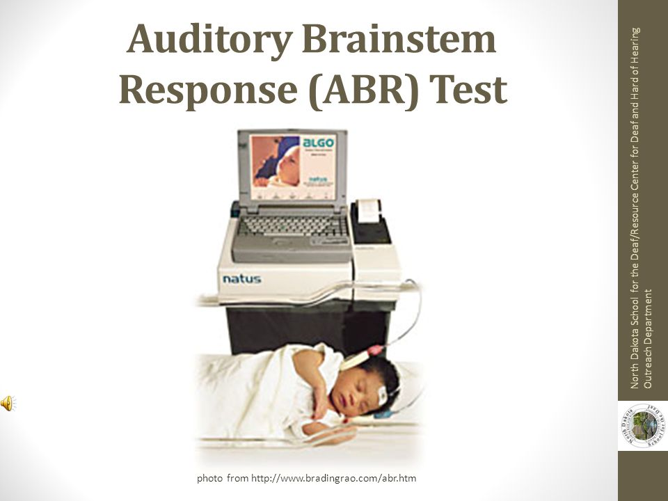 Auditory Brainstem Response (ABR) Test