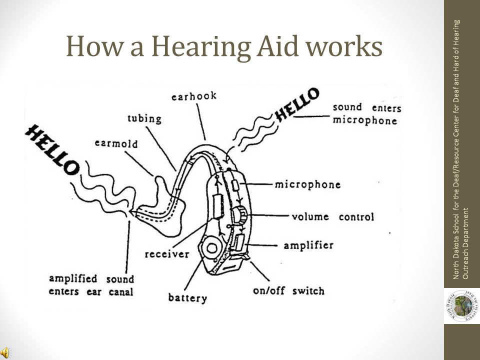 How a Hearing Aid works North Dakota School for the Deaf/Resource Center for Deaf and Hard of Hearing Outreach Department.