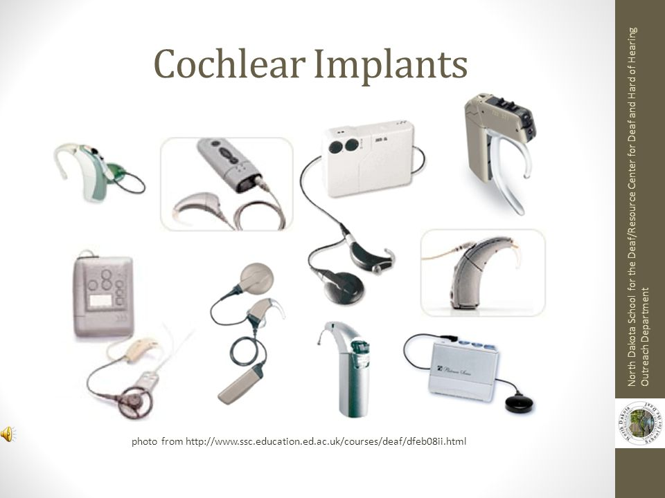 Cochlear Implants North Dakota School for the Deaf/Resource Center for Deaf and Hard of Hearing Outreach Department.