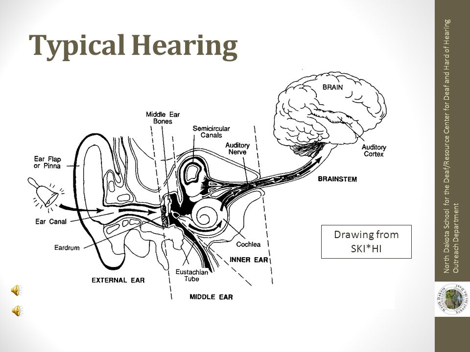 Typical Hearing Drawing from SKI*HI