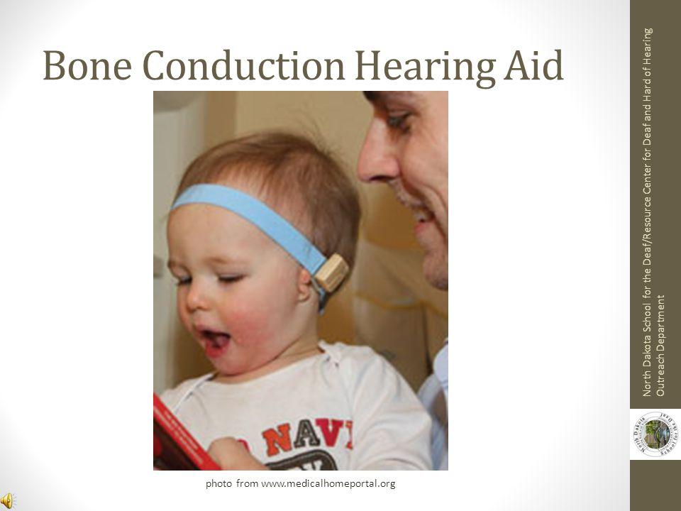 Bone Conduction Hearing Aid