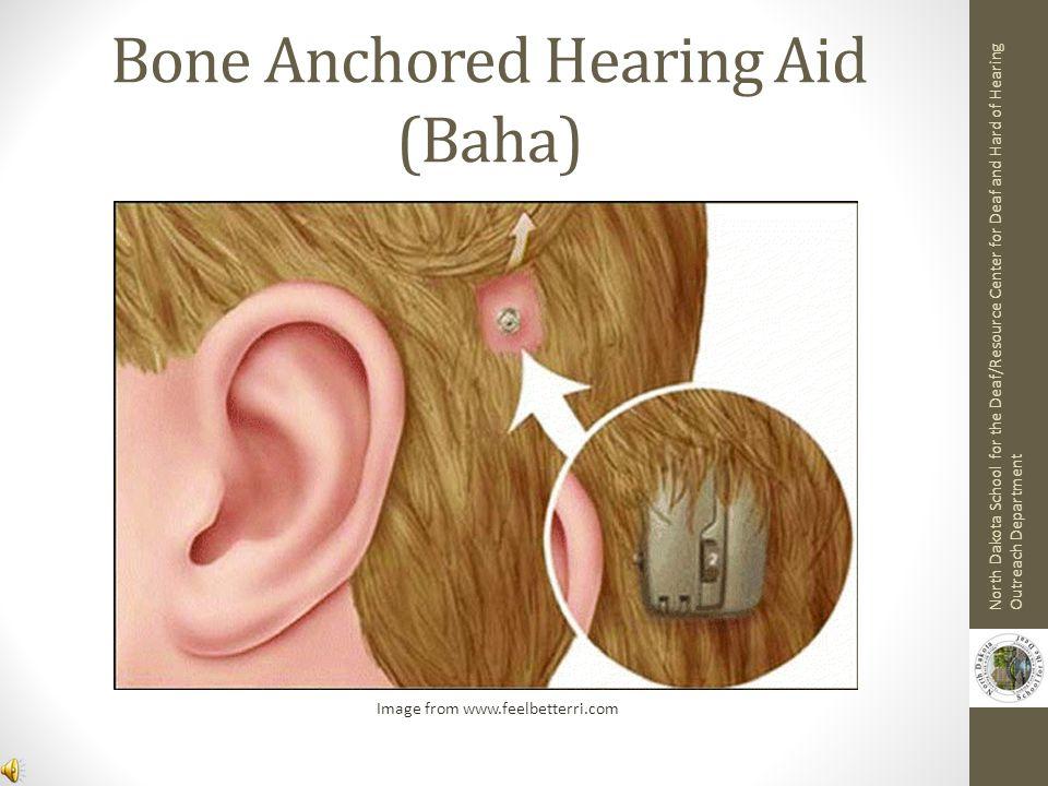 Bone Anchored Hearing Aid (Baha)