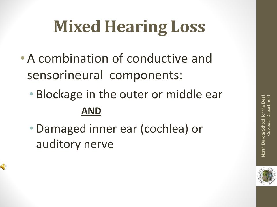Mixed Hearing Loss A combination of conductive and sensorineural components: Blockage in the outer or middle ear.