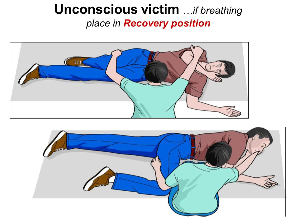 Unconscious victim …if breathing place in Recovery position