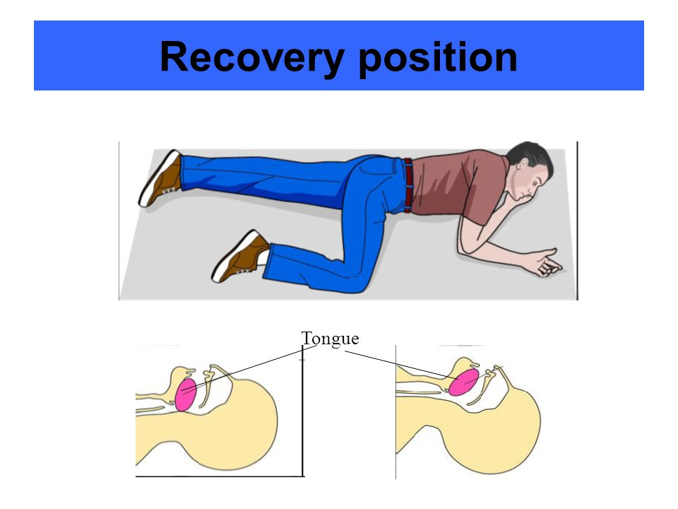 Recovery position Tongue