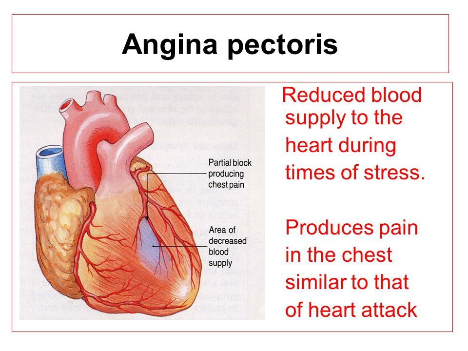 Angina pectoris Reduced blood supply to the heart during