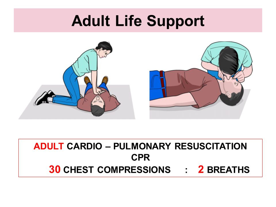 30 CHEST COMPRESSIONS : 2 BREATHS