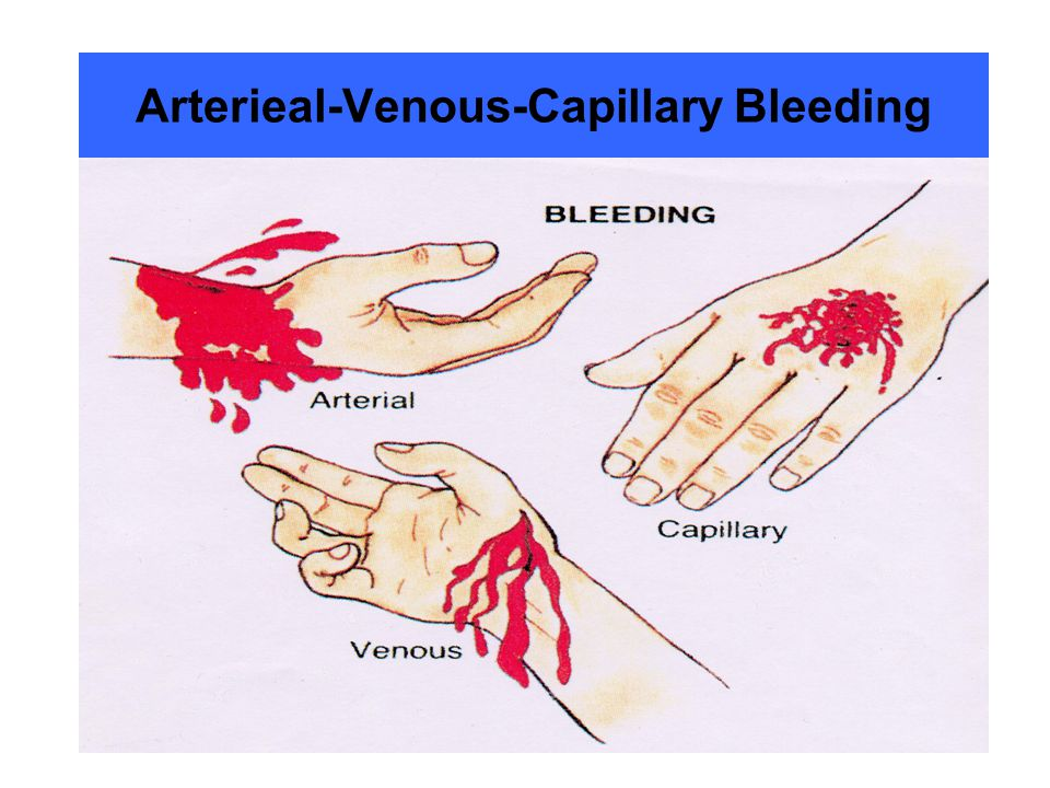 Arterieal-Venous-Capillary Bleeding