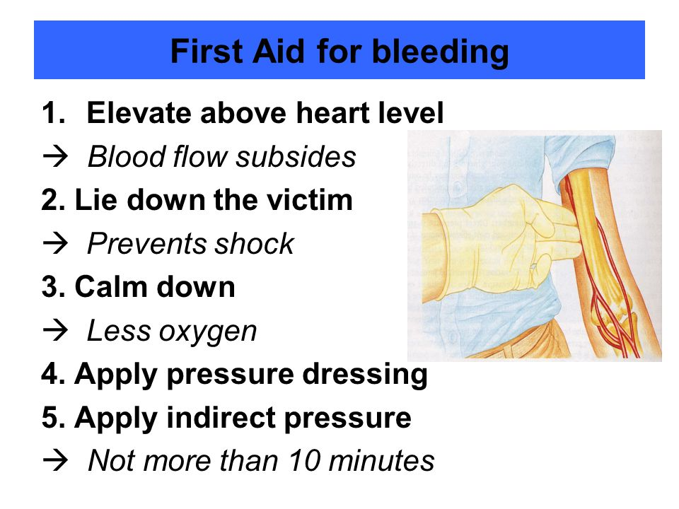 First Aid for bleeding Elevate above heart level  Blood flow subsides