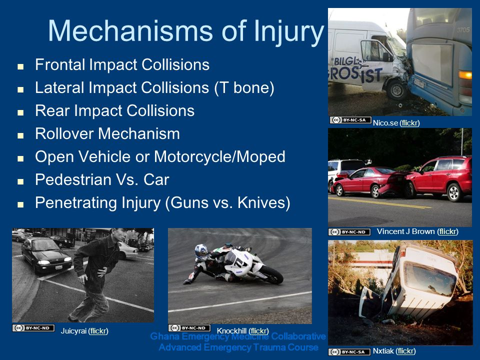 Mechanisms of Injury Frontal Impact Collisions
