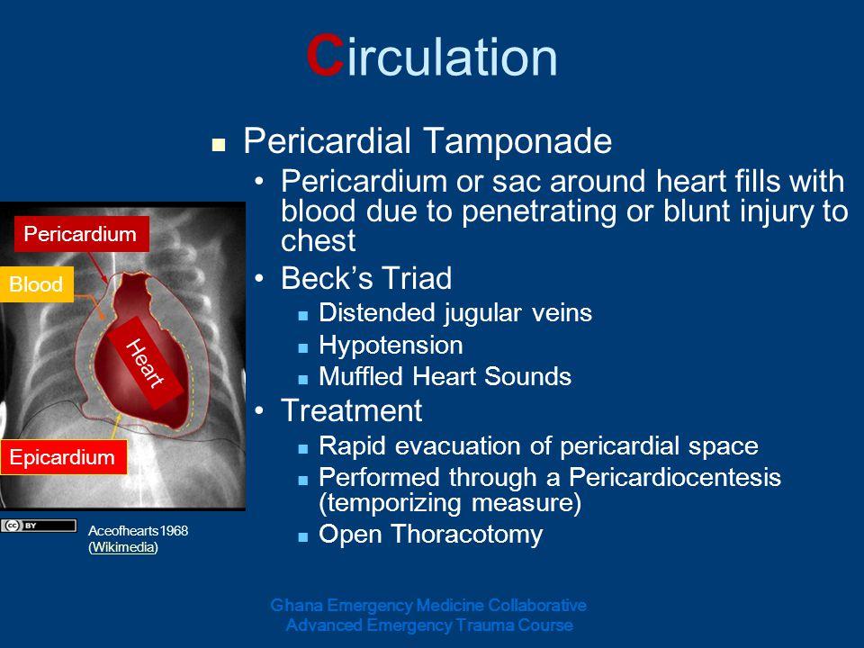 Circulation Pericardial Tamponade