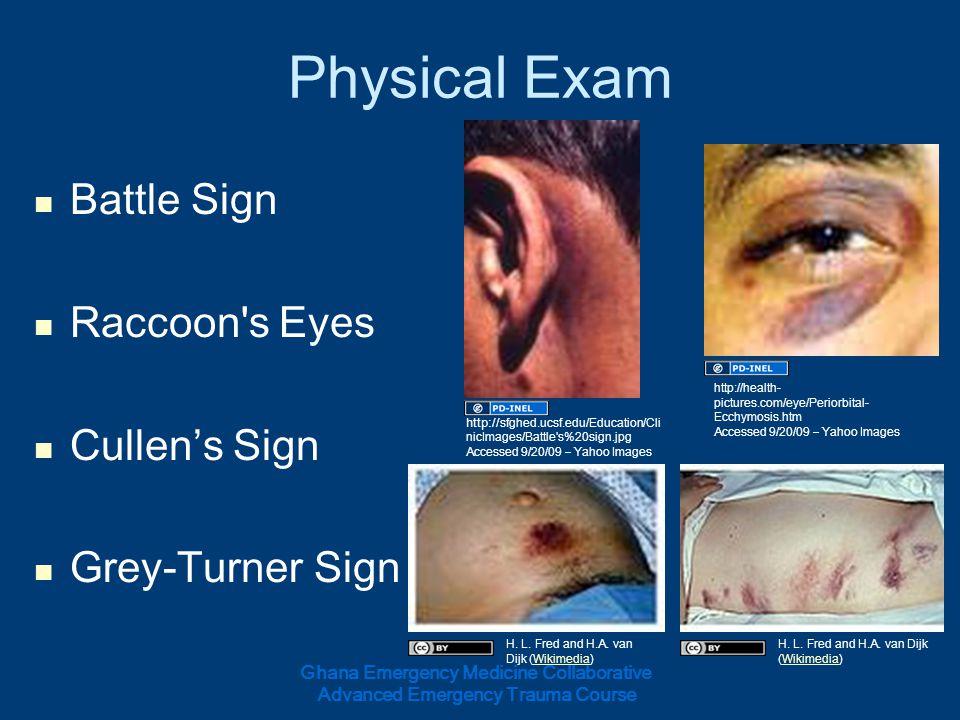 Physical Exam Battle Sign Raccoon s Eyes Cullen's Sign