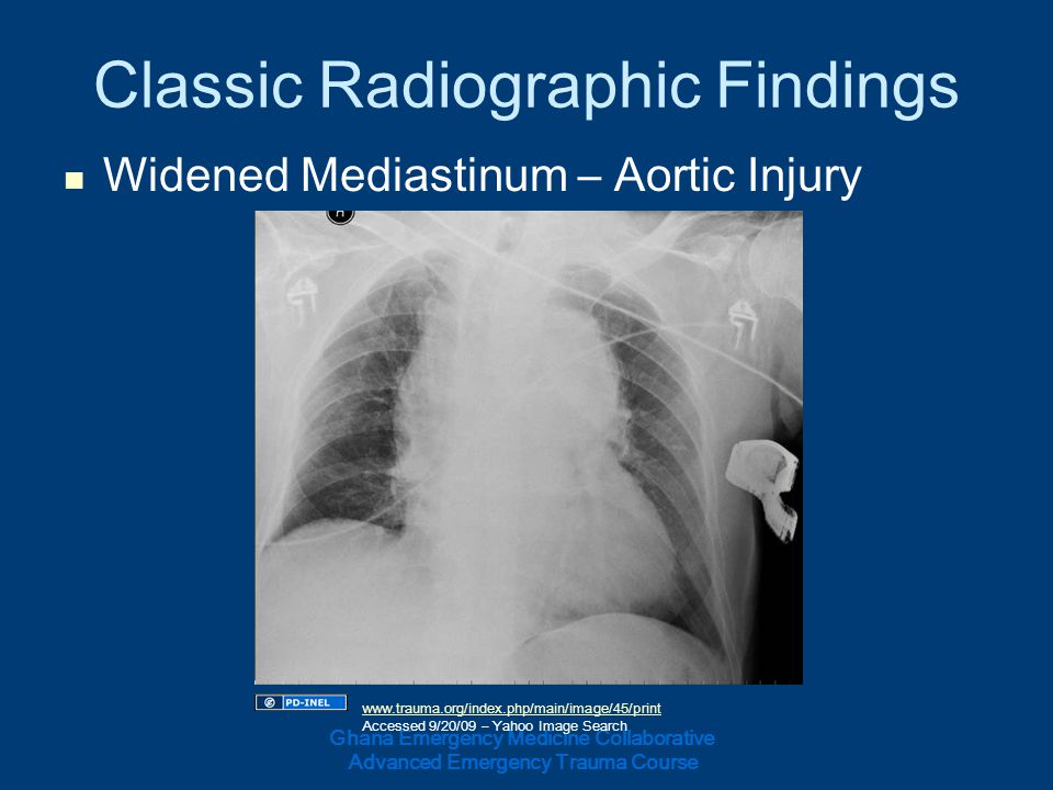 Classic Radiographic Findings